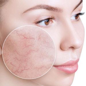 couperose angiomes sur le visage