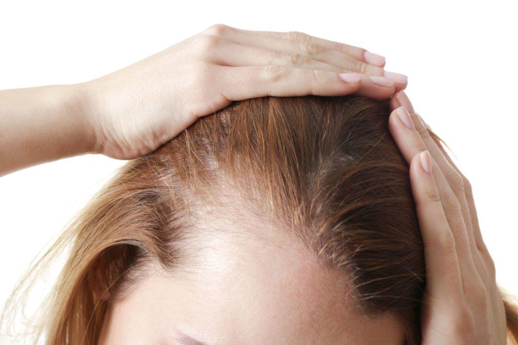 chute de cheveux médecine esthétique