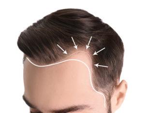 greffe de cheveux centre laser caen