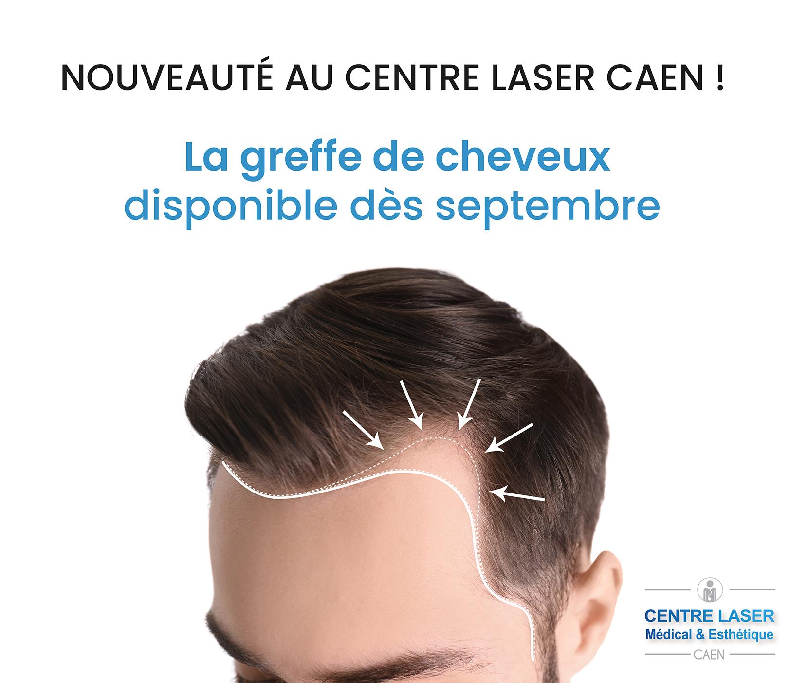 greffe de cheveux caen centre laser