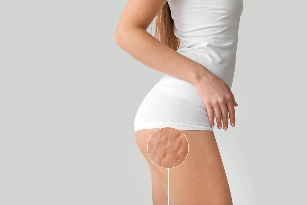 cellulite traitement centre laser caen