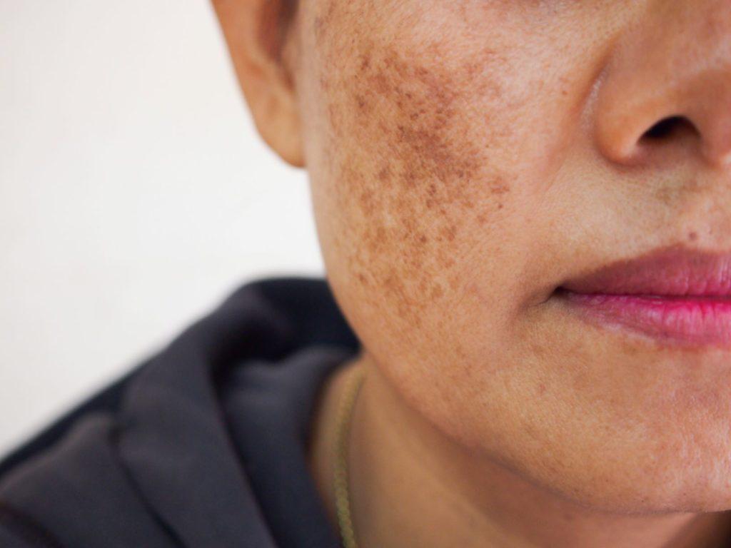 tâches brunes sur le visage