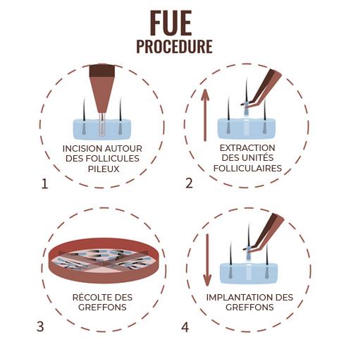 fue-procedure-centre-laser-caen
